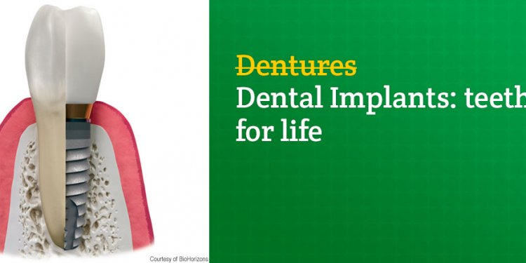 The Benefits of Dental