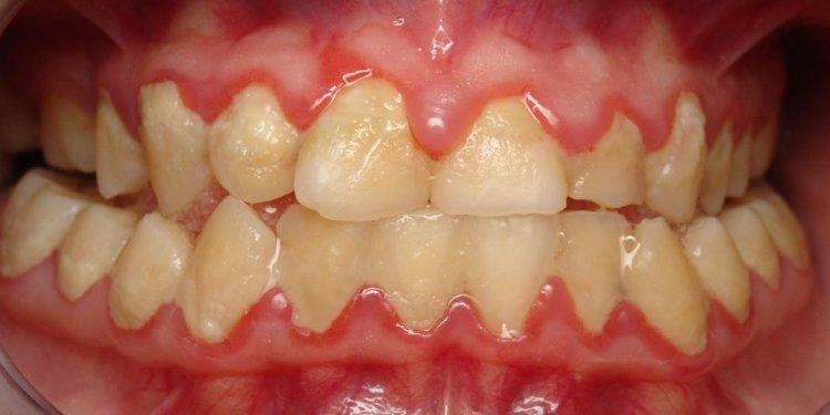 Of Poor Oral Hygiene