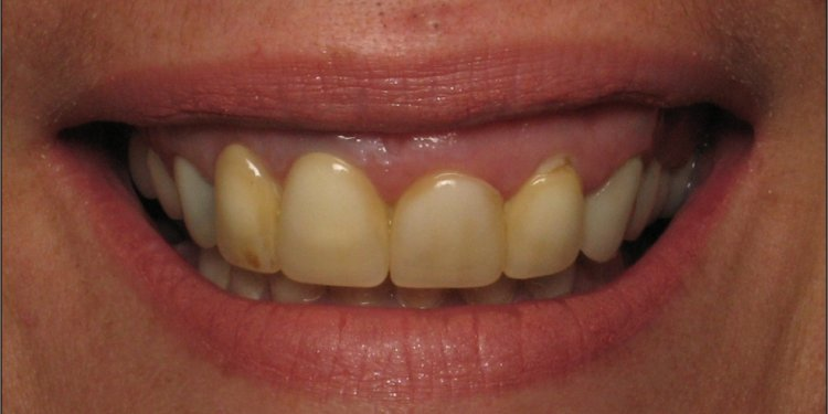 Cosmetic Gum Procedures
