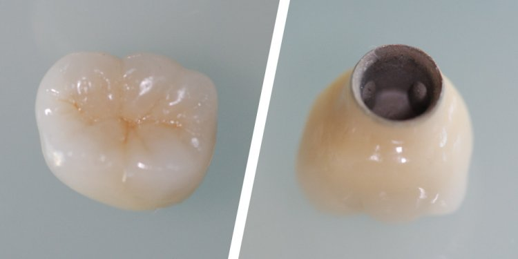 Crown for dental implant