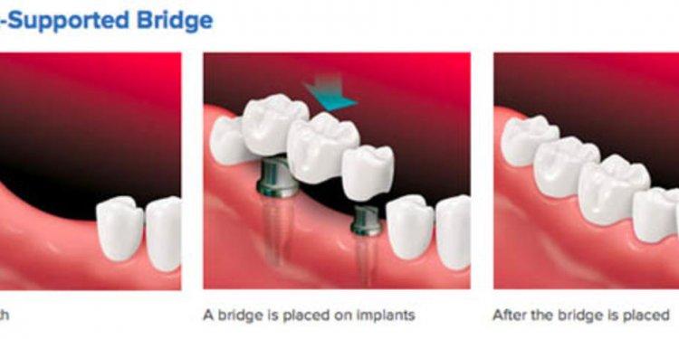 Dental Implants California