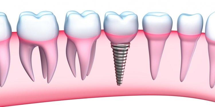Dental Implants - Doctor