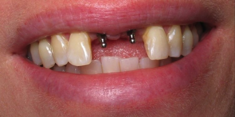 The Dental Implant Placement