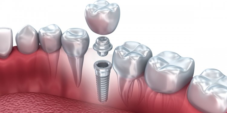 Dental Implants – Procedures