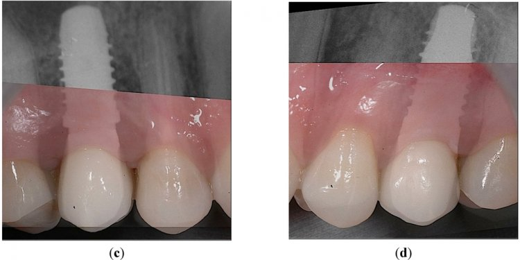 Dentistry 03 55 g007b