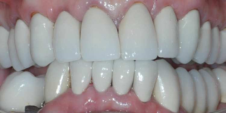 Dental implants and implant