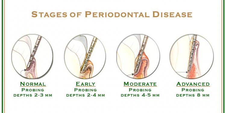 The word periodontal means