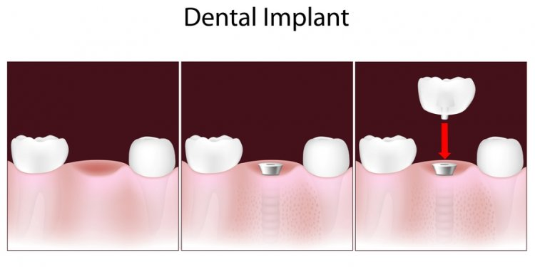 Dental implants. blood