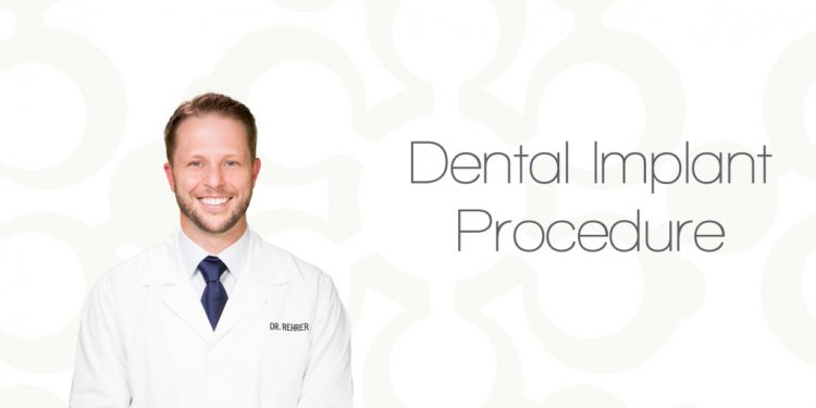 Dental Implant Procedure in