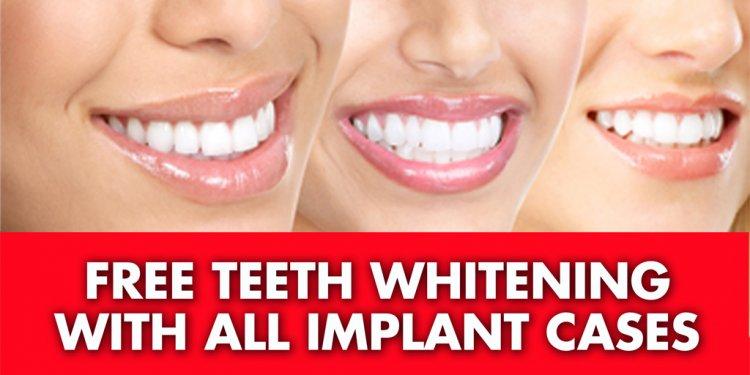 Dental-Implants-of-LI-Free