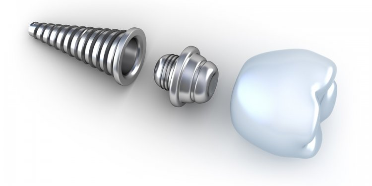 The different dental implants