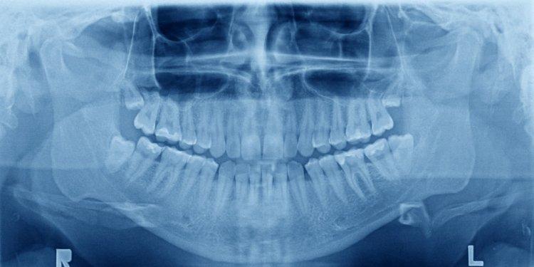 Oral Disease - Sacramento