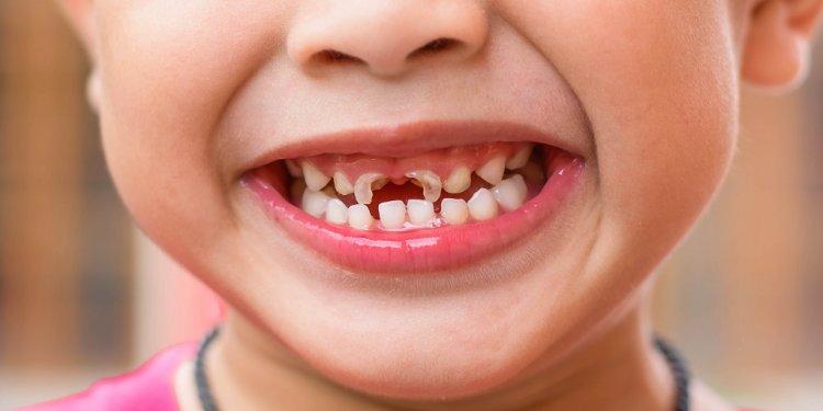 Oral-care-nhs-1ohww