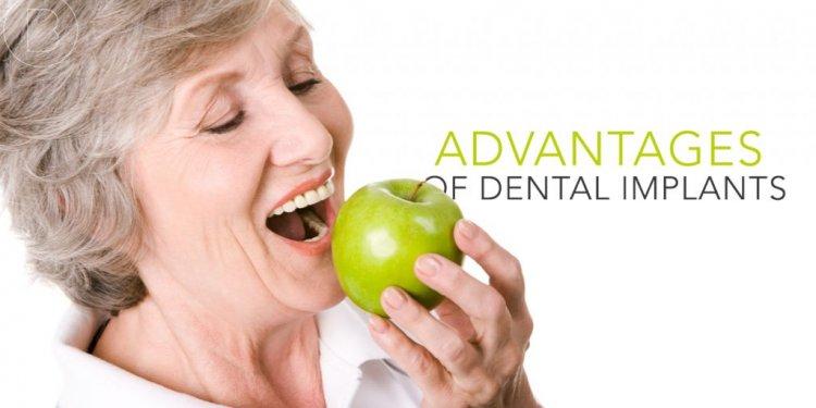 Advantages of Dental Implants