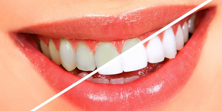 What is good Oral health?