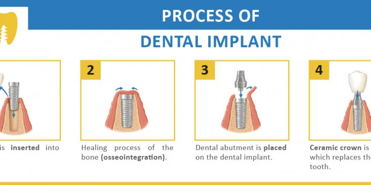 Process of getting Dental Implants