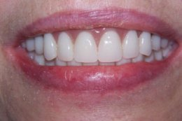 After Prosthodontic treatment