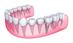 Dental implants and full mouth reconstruction from the leading dental implant specialist in Kennewick, WA