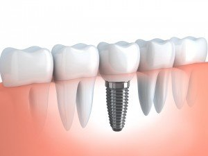 Dental Implants Murfreesboro, TN