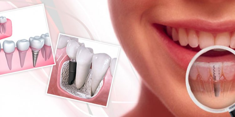 Dental Implantation cost