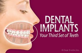 Dental implants - your third set of teeth.