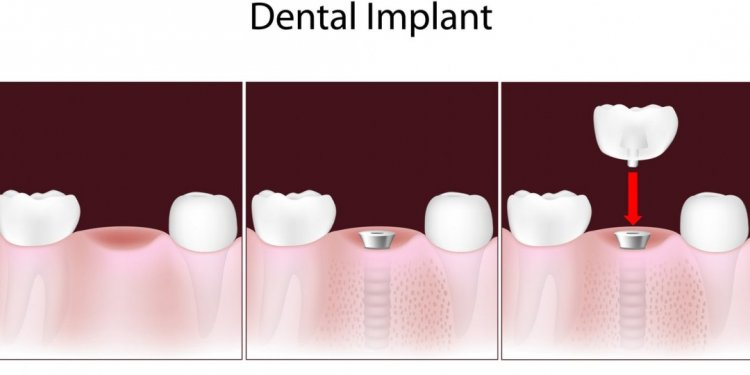 Tooth Implants covered by insurance