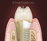 Exactly What Are Dental Implants?