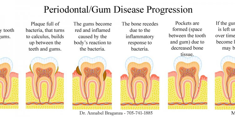 Dental Implants Periodontal Disease
