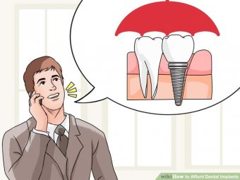 Image titled Afford Dental Implants Step 1