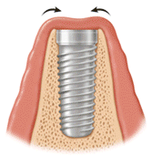 Implant Covered by Gum Tissue