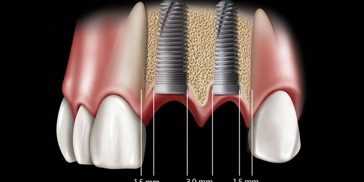 Dental stents Implants