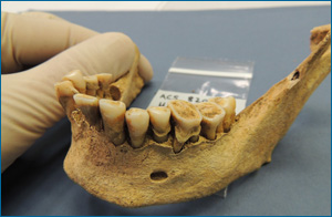 Late Iron Age/Roman woman showing large dental calculus deposit, from Cambridge area, UK. Photo: Alan Cooper