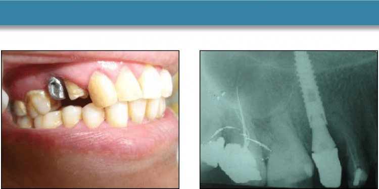 Journal of Implant and Advanced Clinical Dentistry