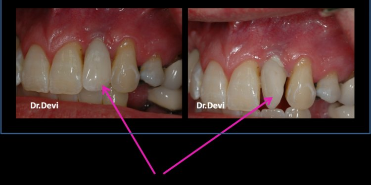 Dental Implants Problems
