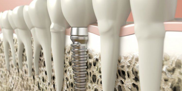 TADs Dental Implant
