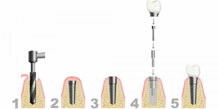 What is Dental Implants procedure?