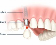 Are dental implants covered by dental insurance