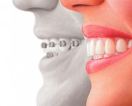Cosmetic Dentistry, Dental implants