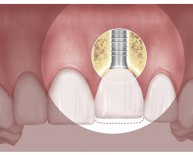 Dental Implant movement