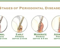 Dental Implants and Periodontal Disease