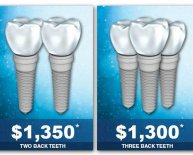 Dental implants cost insurance