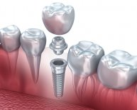 Dental Implants Procedures