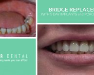 Dental Implants upper jaw