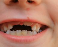 Fluoridation and Dental Health