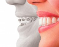 Implants and Cosmetic Dentistry