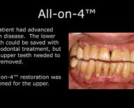 Implants one Dental Implants