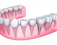 Kinds of Dental Implants