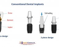Side effects of Dental Implants