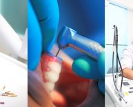 Types of implants in Dentistry