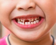 What is Oral Health care?